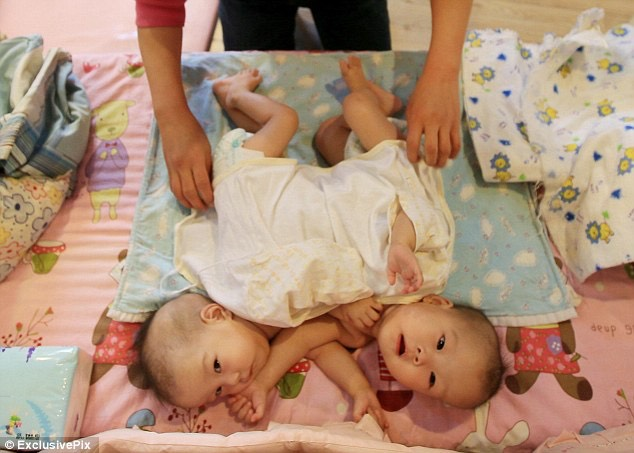 1. Conjoined twins Zheng Hanjing and Zheng Hanwei were abandoned at an orphanage in Pingdingshan City, Henan - article-2520391-19F3C29800000578-708_634x453